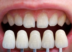 Porcelain veneers vs. imperfect teeth