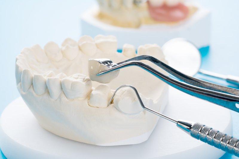 Dental tool putting dental crown on mold of teeth